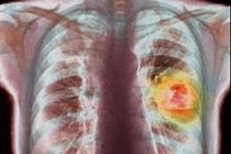 обнаружение рака легких