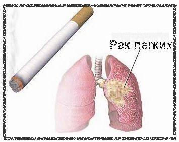 причина рака легких